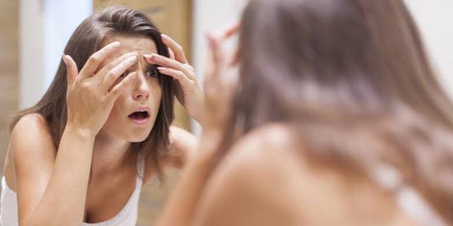 5 Cara Efektif Hilangkan Bekas Jerawat di Wajah