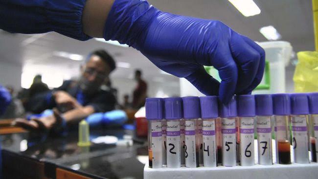 Mengenal Axial AI, Alat Deteksi Covid-19 Tanpa Swab dan Tes Darah